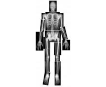 [Radiografii ale scheletului uman]